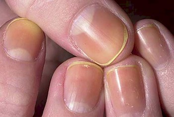 5 Symptoms Of What Your Fingernails Say About Your Health